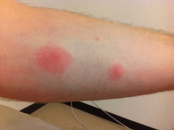 examples of roach bites on humans 1