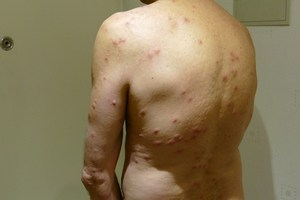 Bed bug bites over the body